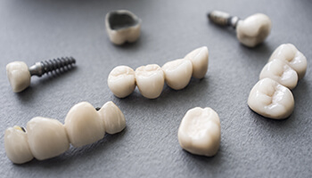 Image result for Teeth Implants