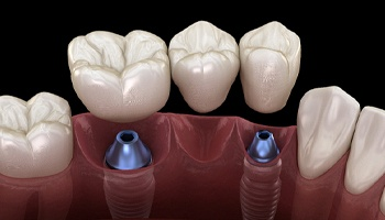 Dental implant bridge