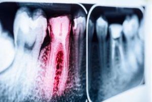 Inflamed tooth on an x-ray
