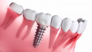 Implant and regular teeth